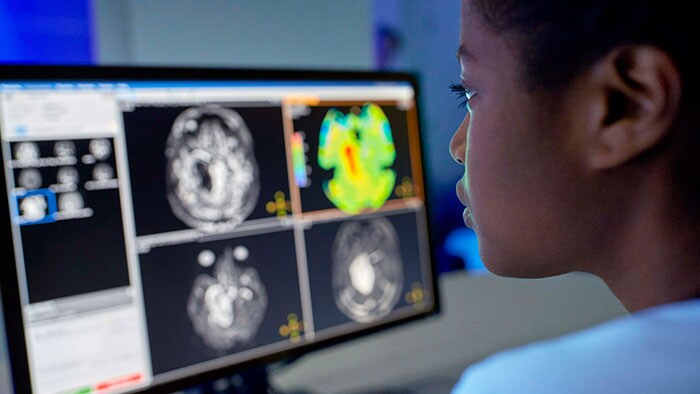 Smart Workflows: Improving imaging productivity and clinical confidence with AI